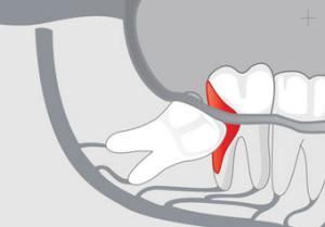 Doit-on extraire les dents de sagesse ?
